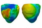 Heart model UCLA Cardiac Modeling Group